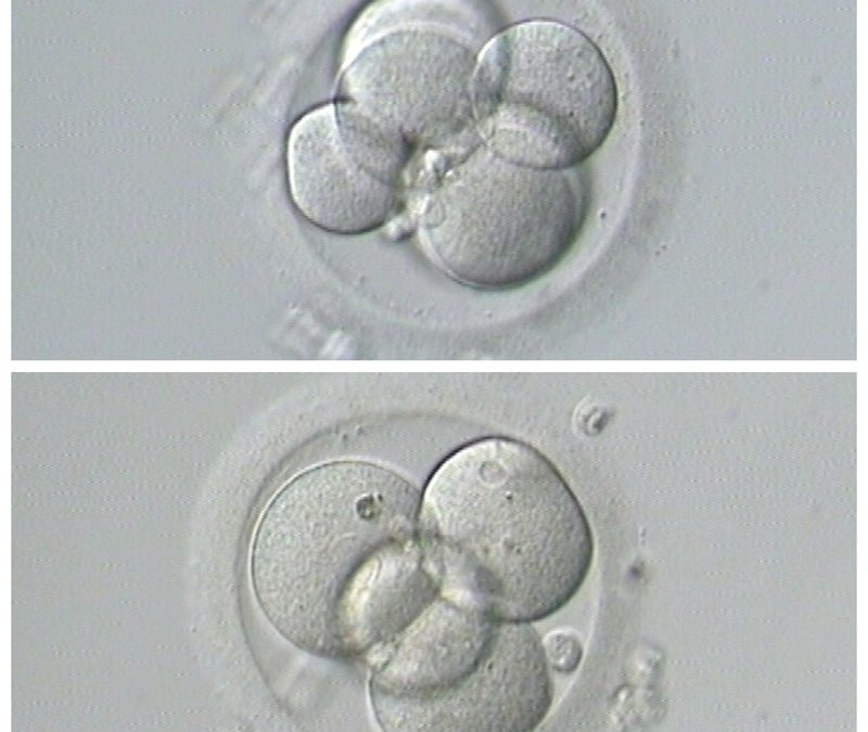 First Steps in IVF